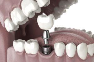 Implantologie und Implantate (Bildnachweis: Maxx-Studio/Shutterstock.com)